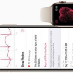 Here's how you can enable ECG on an unsupported Apple Watch (with & without jailbreak)